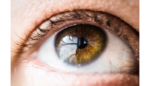 Azura Ophthalmics raises $16m for meibomian gland dysfunction therapy